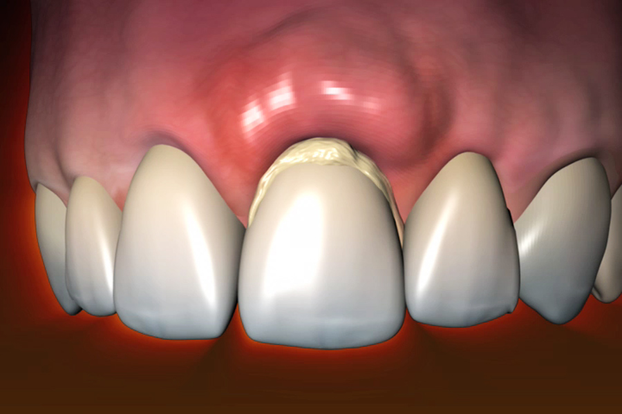 5 Symptoms of The Common Dental Problems